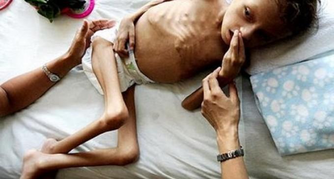 Francisco: Para vencer el hambre es necesario cambiar el paradigma de las políticas de ayuda y desarrollo