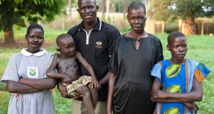 Victor Ochen, uno de los líderes africanos más influyentes: «Cuando la única esperanza es Dios»