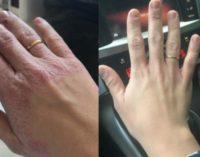 La mano de María antes y después de visitar Lourdes