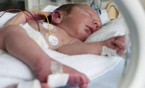 Recién nacidos prematuros: Opinión de la sociedad sobre retirar soporte vital ante graves problemas de salud