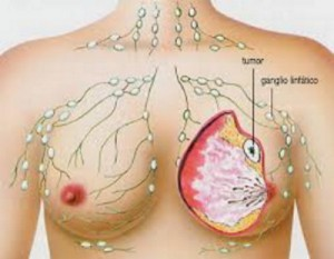 cáncer de mama