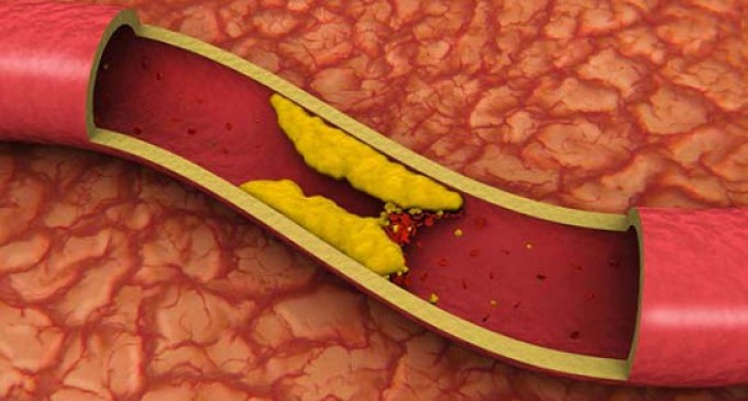 Hipercolesterolemia Familiar heterocigota