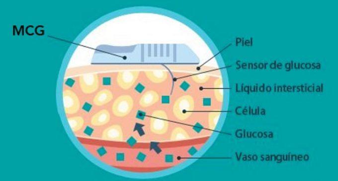 La Comunidad invierte 57,6 millones en tiras reactivas de glucemia y ofrece a pacientes con diabetes tipo 1 medidores de glucosa bajo la piel